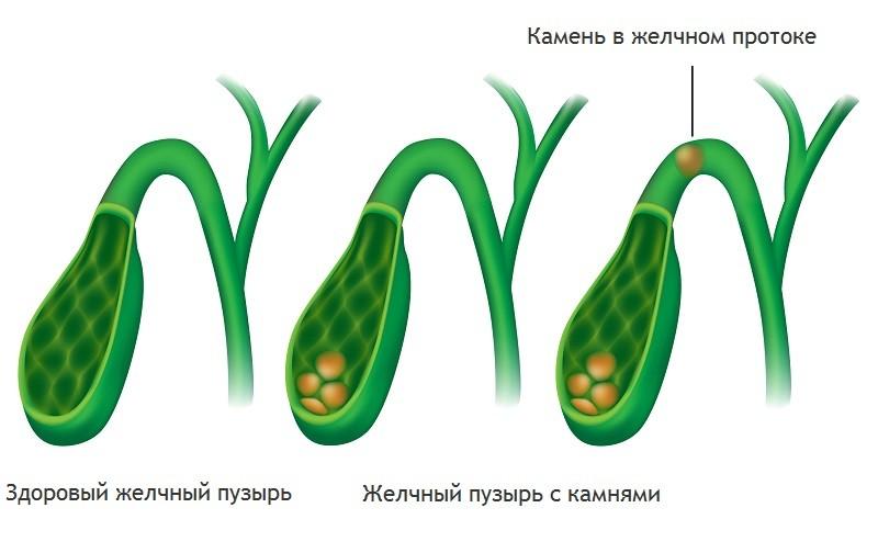 Желчнокаменная болезнь