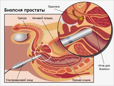 Биопсия предстательной железы: как проводится?