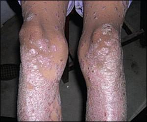 Фото ног при псориатическом артрите