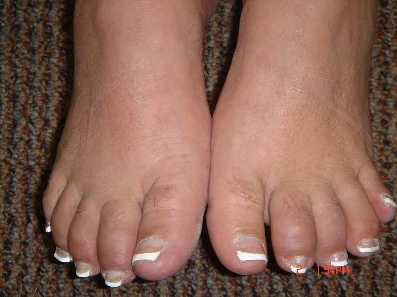 Фото ног при псориатической артропатии
