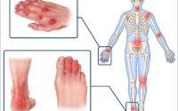 Псориатический артрит – причины, симптомы и лечение