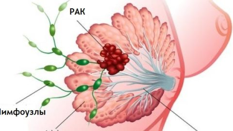 Здоровый образ жизни снижает риск рака груди, говорят ученные