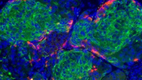 Ученные обнаружили, что вызывает дефект секреции инсулина при диабете