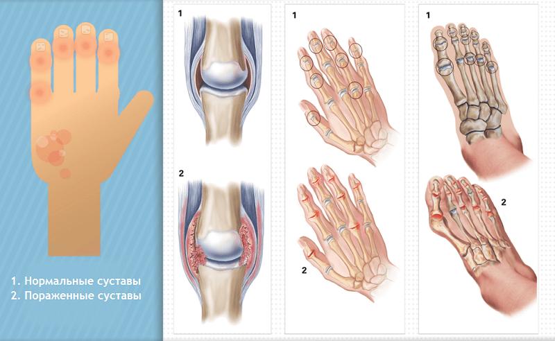 Изменения в суставах при псориатическом артрите