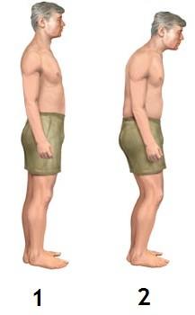 1 - нормальная осанка, 2 - осанка при болезни