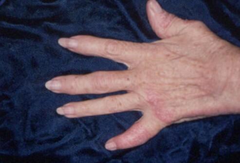 Фото рук при псориатической артропатии