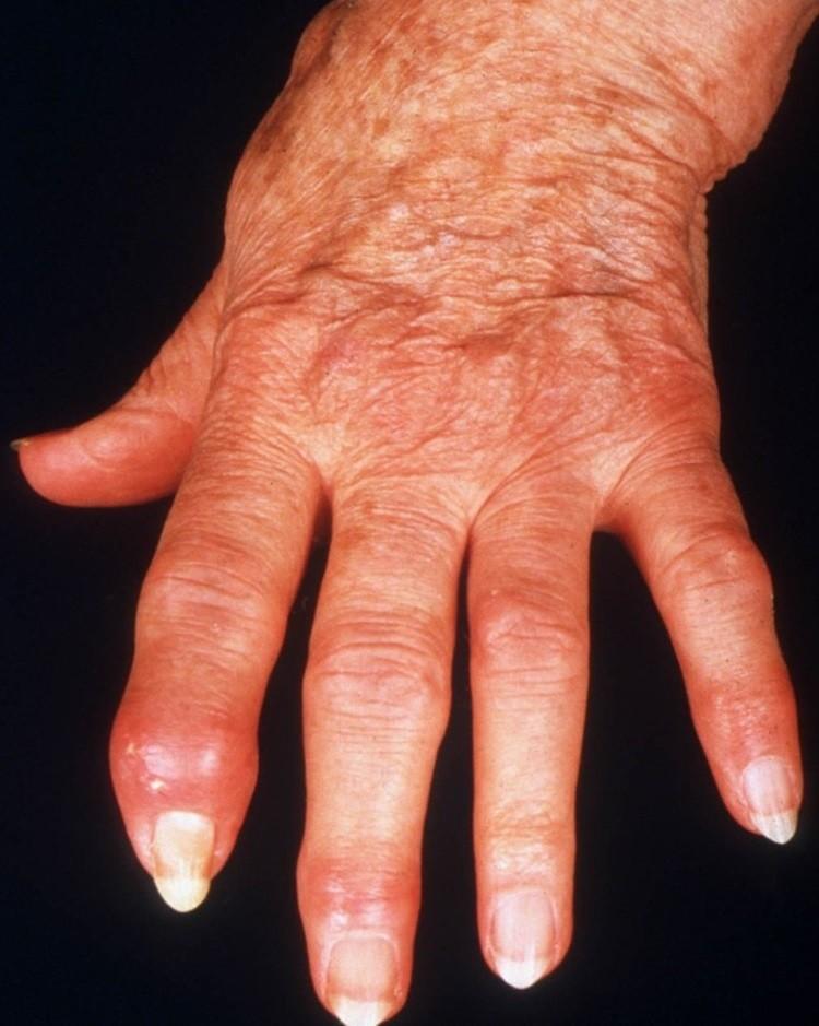 Распухшие пальцы
