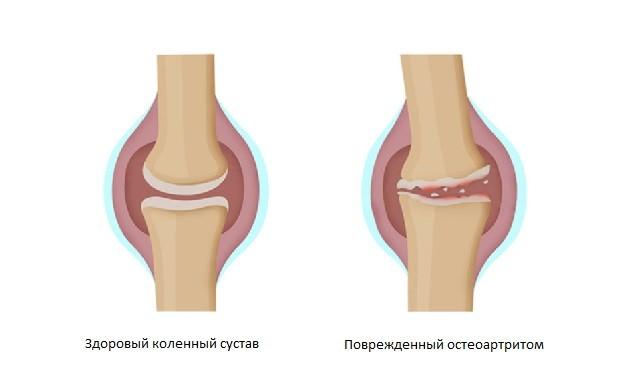 Коленный сустав поврежденный остеоартритом