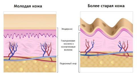 Что такое гиалуроновая кислота? Описание и применение в домашних условиях