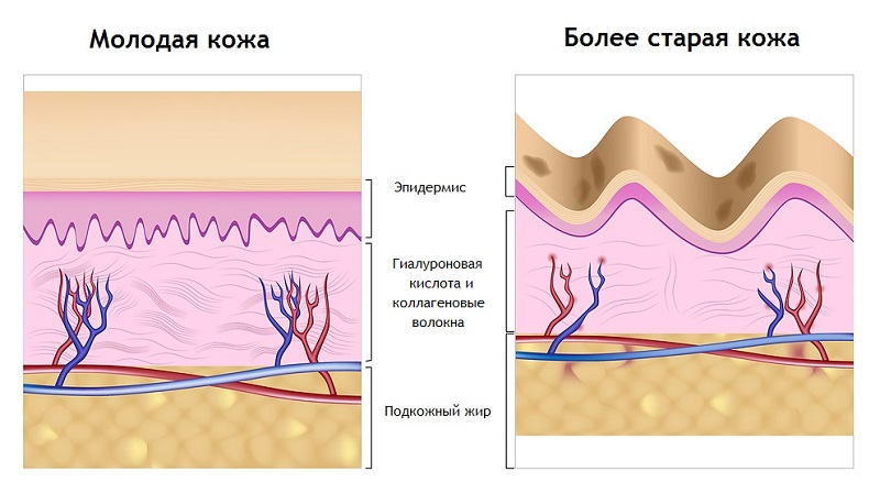 Гиалуроновая кислота и коллагеновые волокна