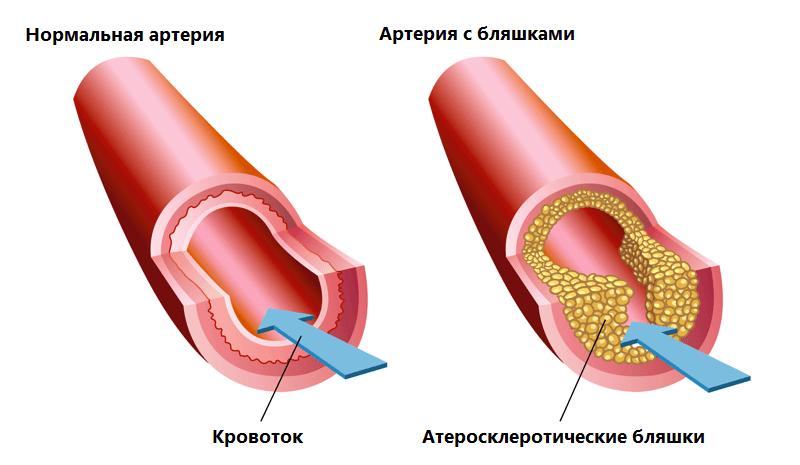 Как повышенный холестерин влияет на сосуды