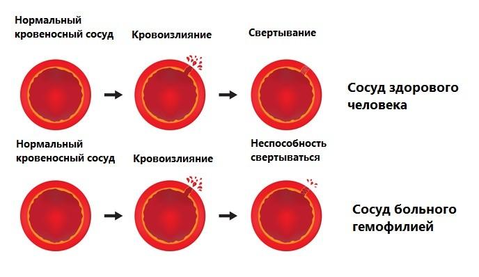 Нарушения, которые вызывает гемофилия