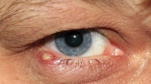 Как быстро лечить ячмень на глазу дома