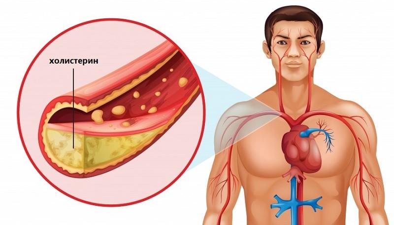 Холистерин блокирует сосуды