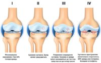Остеоартрит суставов: причины, симптомы, лечение, фото