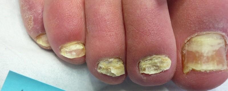 Грибок на ногтях осень