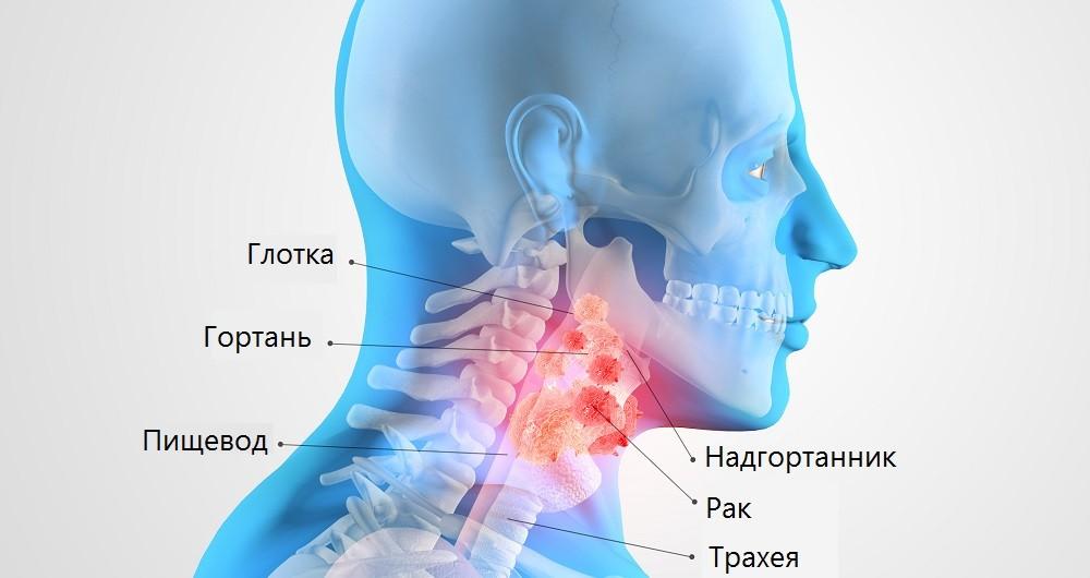 Рак горла - симптомы, причины, стадии и лечение