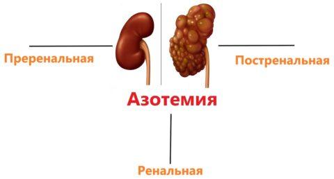 Азотемия: симптомы, типы и лечение