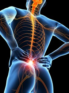 Симптомы сакроилеита