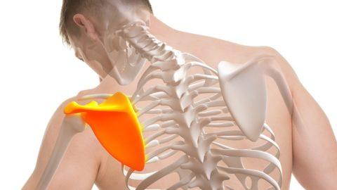 Боль в лопатке — причины, лечение
