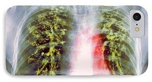 Фиброз легких в результате туберкулеза