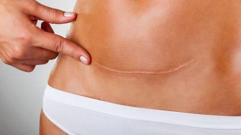 Как удалить шрамы в домашних условиях?