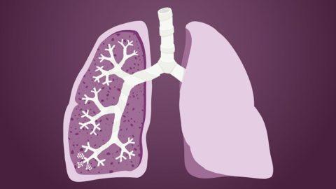 Фиброз легких — что это такое? Причины, симптомы, лечение