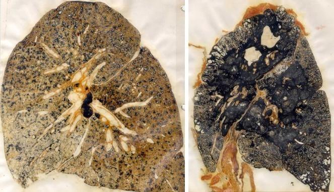 Мулляжи, демонстрирующие пневмокониоз у шахтеров
