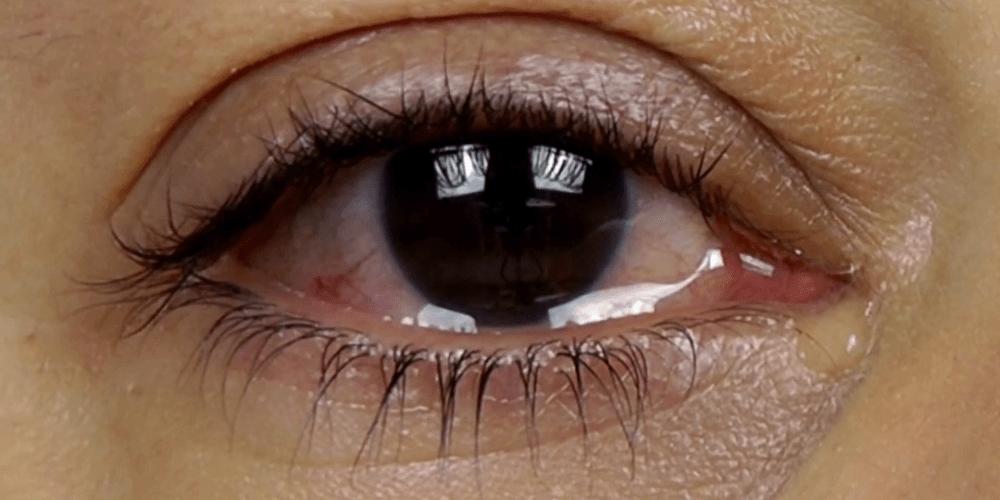 Глаз со слезами
