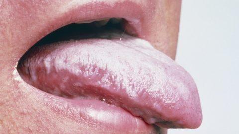 Белый налет на языке: причины, лечение, профилактика