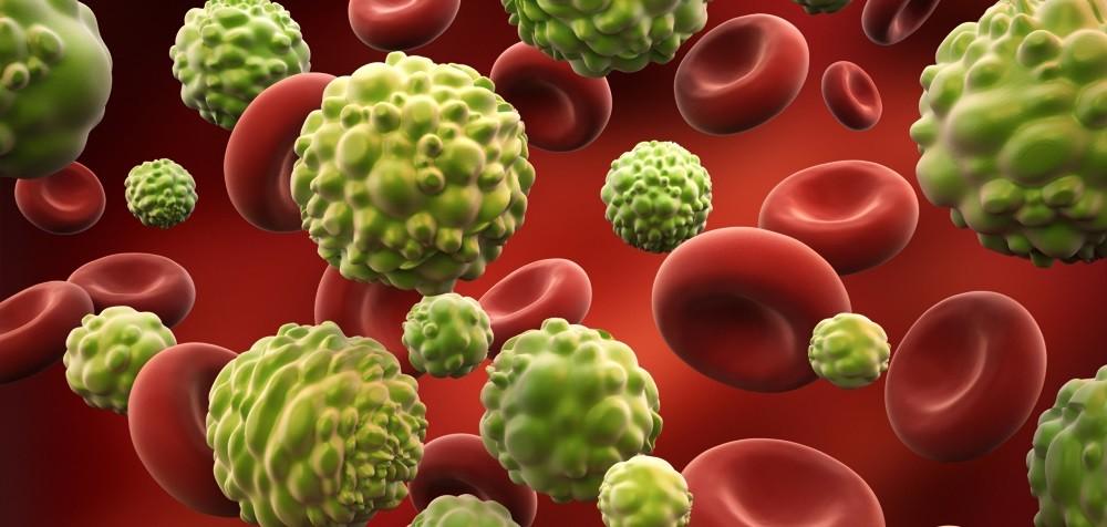 Артемизинин с аминолевулиновой кислотой могут лечить рак