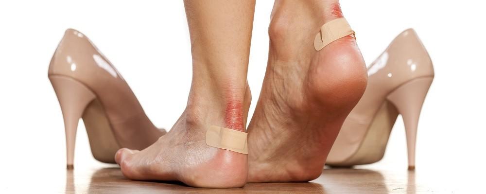 Волдыри на ногах, лечение