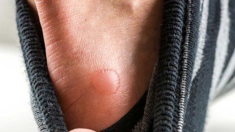 Волдыри на ногах: причины, лечение, профилактика