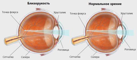 Близорукость (миопия): степени, симптомы, лечение, коррекция