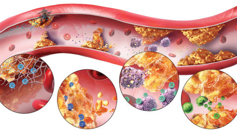 7 природных способов борьбы с атеросклерозом