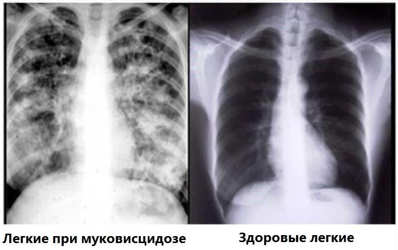 Ренгенологические снимки легких больного муковисцидозом и здоровых легких