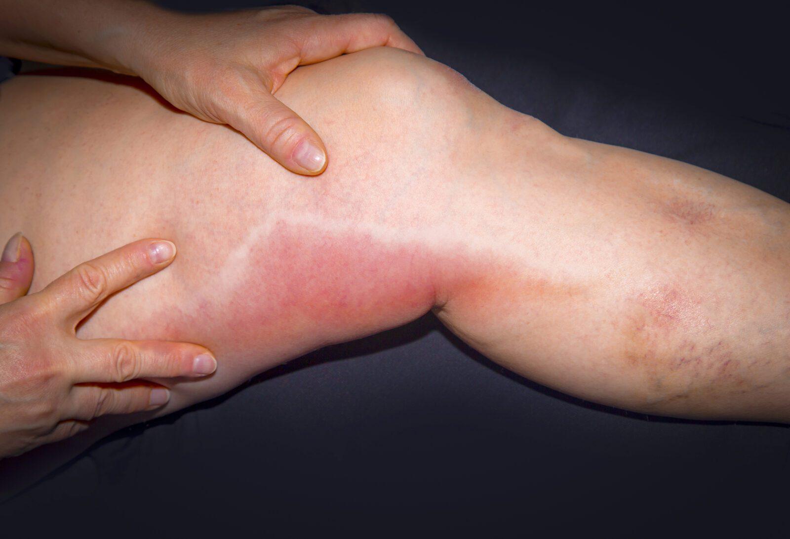 Флебит нижних конечностей – симптомы и лечение картинки