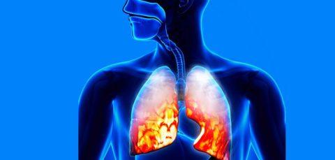 Пневмония (воспаление легких): разновидности, причины, симптомы и особенности лечения