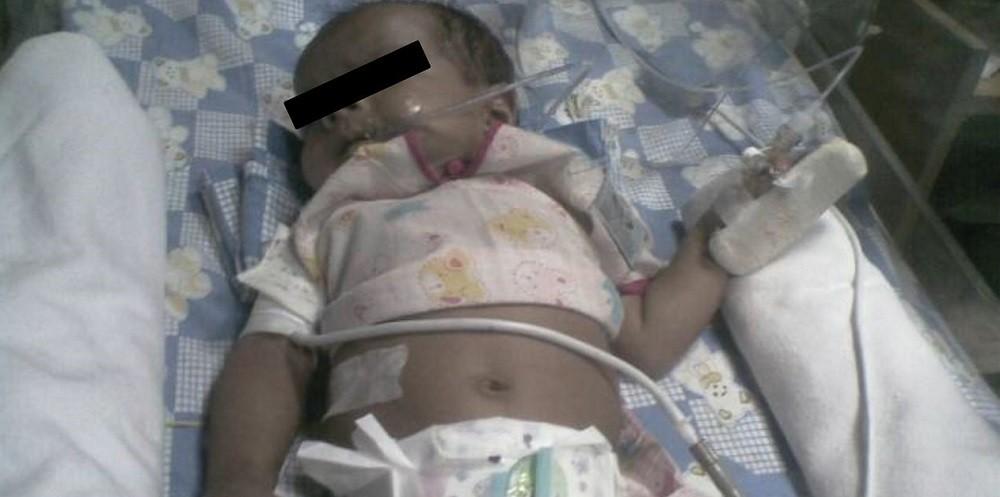 Ребенок с метгемоглобинемией