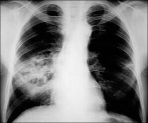 Рентгенографическое исследование при пневмонии
