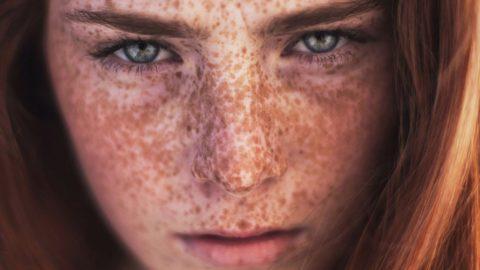 Распространенные проблемы кожи и их решения