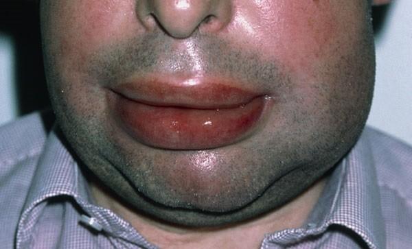Пищевая аллергия у взрослых, фото