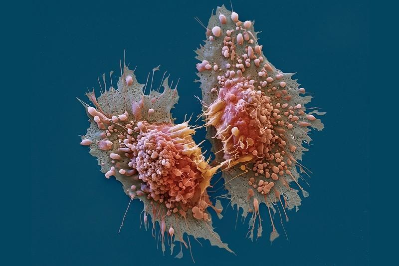 Нашли ли ученые вакцину против рака?