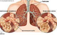 Эмфизема легких - что это? Как лечить?