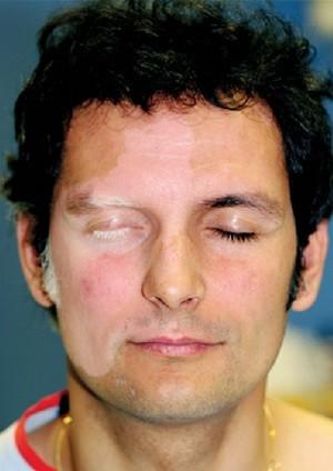 Витилиго на лице, фото