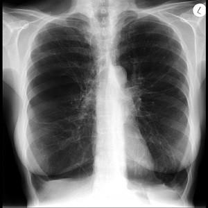 Легкие больного эмфиземой, рентген