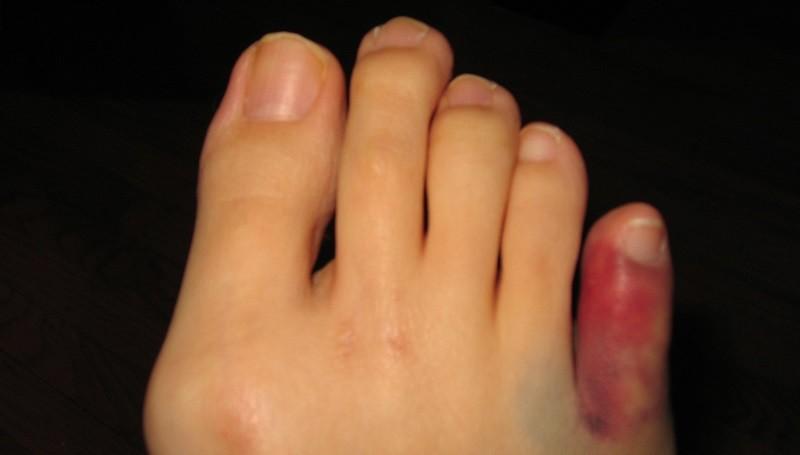 Перелом мизинца на ноге, фото