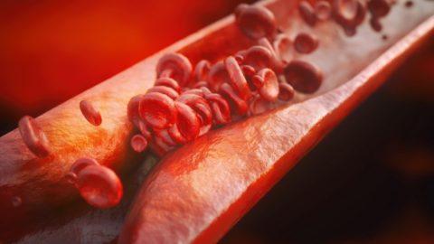 Атеросклероз сосудов: причины, симптомы, лечение