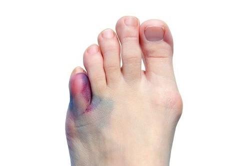 Признаки и симптомы перелома мизинца на ноге