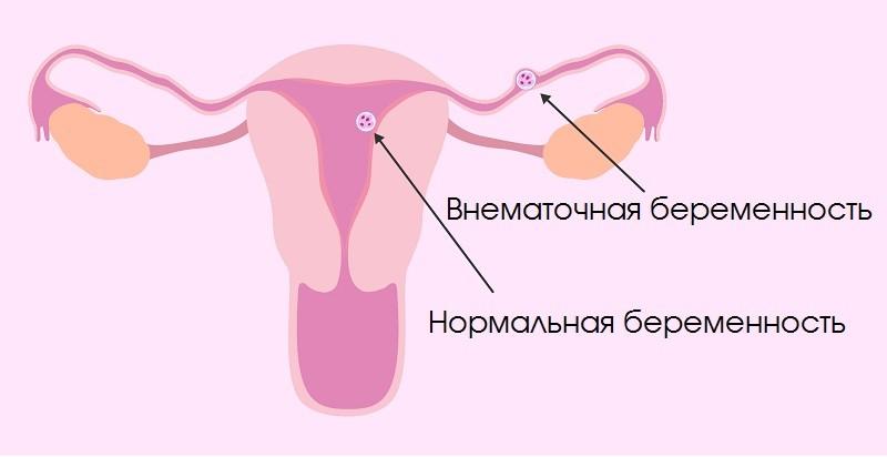 Нормальная и внематочная беременность